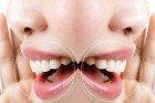 Campanha destaca check-up contra o câncer bucal
